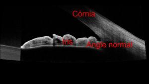Imatge d´un angle entre l´iris i la còrnia normal