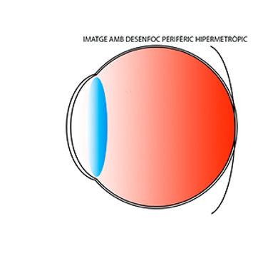 Imatge amb desenfoc perifèric hipermetròpic