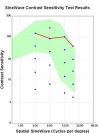 Resultat gràfic d´un estudi de sensibilitat al contrast