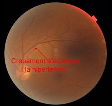 Fons d´ull d´una persona amb retinopatia hipertensiva