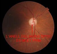 Fons d´ull d´una persona amb glaucoma