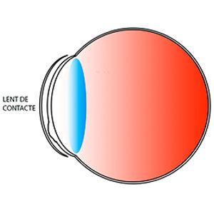 La lent de contacte torna a crear una superfície regular, proporcionant una bona qualitat d´imatge