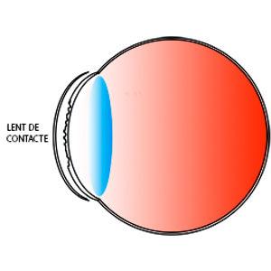 Una lent de contacte rígida proporciona una superfície regular, aconseguint una imatge nítida