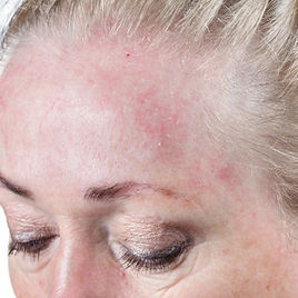 rosacea on the forehead
