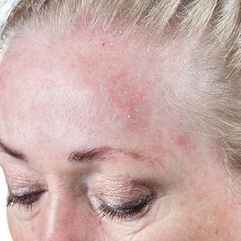 rosacea on the forehead