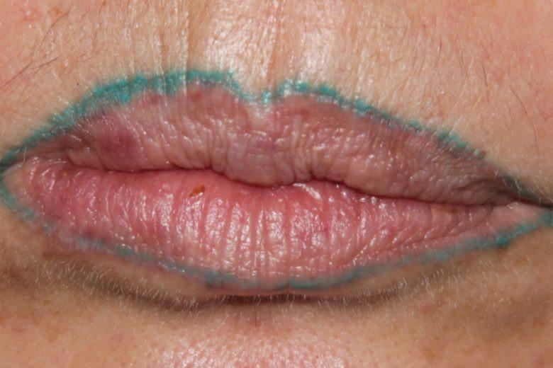 Botched Lip Tattoo