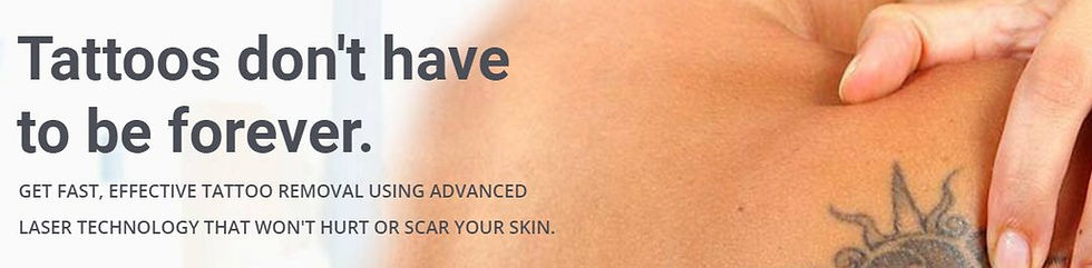 Laser Tattoo Removal in Adelaide
