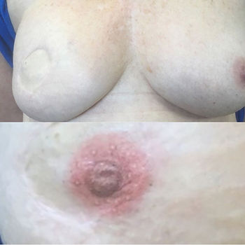 Areola Tattoo - Before and After With Closeup