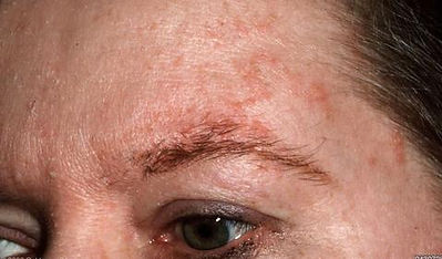 dermatitis around the eyebrows
