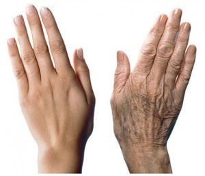 Laser Hand Rejuvenation in Adelaide - Young vs Old Hands