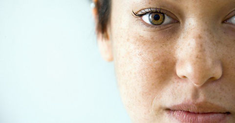 Laser Pigmentation Removal Adelaide - Face With Freckles