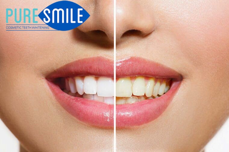 cosmetic teeth whitening in Adelaide - Pure Smile treatment
