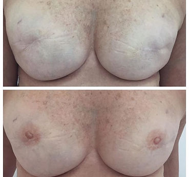 Areola Pigmentation in Adelaide - Before and After Photos