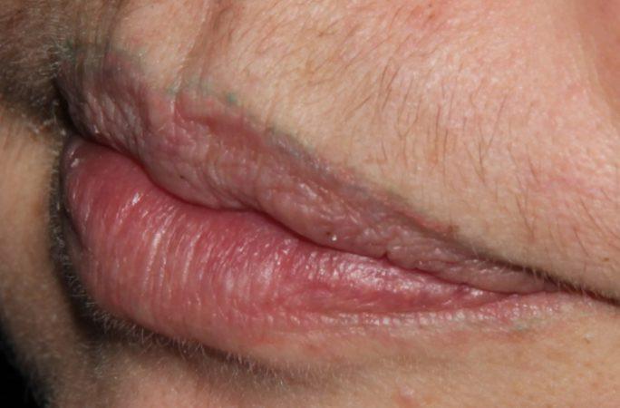 Lip Tattoo Removal