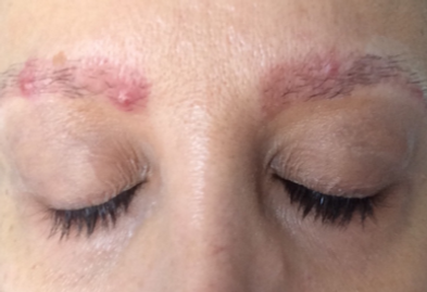 chronic acne on the eyebrows