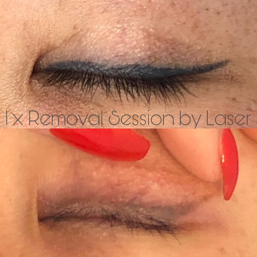 Eyeliner Tattoo Removal in Adelaide by Laser