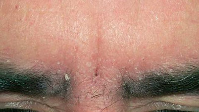 Microblading Adelaide