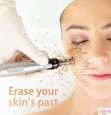 Laser Skin Rejuvenation Adelaide - Facial Application