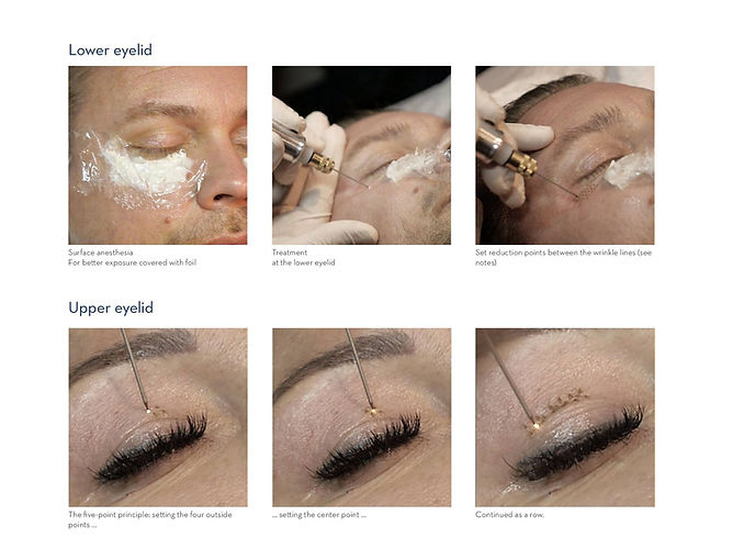 Lower Eyelid and Upper Eyelid Treatment