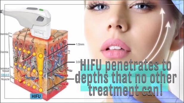 HIFU Skin Penetration - Depth of Treatment