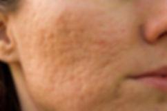 Acne Scar Laser Treatment