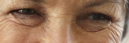 Laser Wrinkle and Fine Line Removal