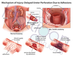Ureter Perforation