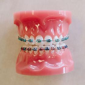 Types of Braces Carmel, IN I Braces Carmel I Carmel Orthodontist