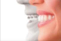 Carmel, IN Orthodontist I Carmel Ortho I Carmel Indianapolis