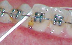 Orthodontist Carmel I Braces Carmel I Carmel Orthodontics
