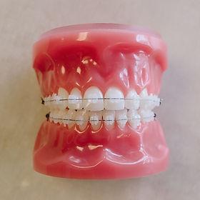 Clear Braces in Carmel, IN I Clear Braces Carmel I Carmel Orthodontist