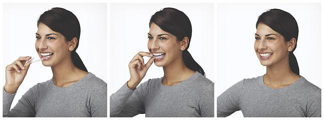 Carmel, Indiana Orthodontist I Carmel Invisalign I Carmel Orthodontics I Carmel Ortho
