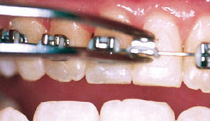 Carmel Orthodontist I Carmel Braces I Carmel Orthodontics