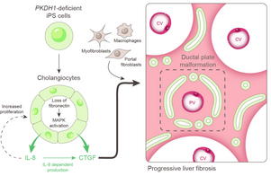 Loss of Fibrocystin Promotes Interleukin-8-Dependent Proliferation and CTGF Production of Biliary Epithelium