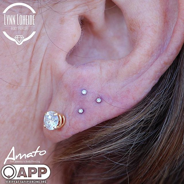 Adorable triple lobe with some _bvla dia