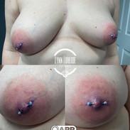 fresh nipple piercings with anatometal