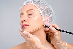 Plastic surgery. Woman with dotted lines
