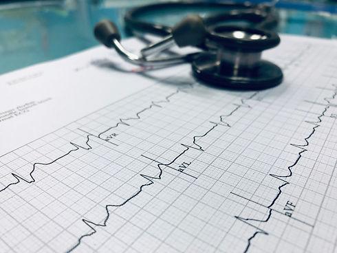 Oakville Cardiologists, Oakville Ontario, ECG