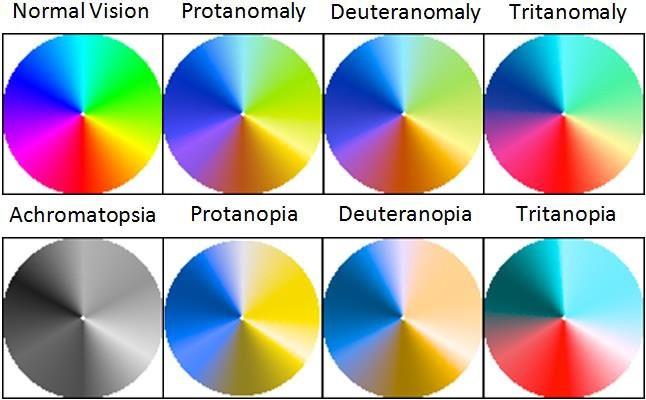 Normal Vision, Protanomaly, Deuteranomaly Tritanomaly, Chromatopsia, Protanopia, Deuteranopia, Tritanopia