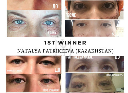 Discover the 3 winners of Beauty Monster Contest!