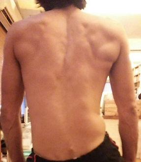 奄美大島名瀬のゆがみ・痛み改善専門の整体院「わかば整体院」| 施術前