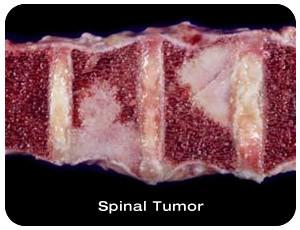 BRAIN AND SPINAL TUMORS