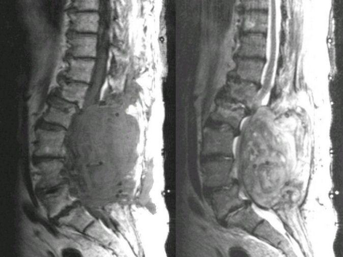 Photograph of Spinal Epidural Hematoma