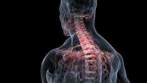 Neck & Back Pain Diagnosis