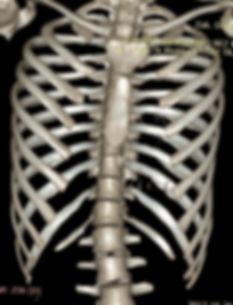 Tomografia 3D klatki lejkowatej