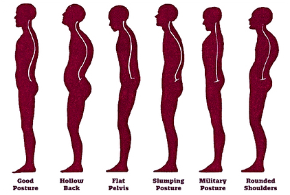 GPR Global posture reeducation Pulse Physioteraphy and Pilates Brisbane red Hill