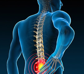 Lower Back Pain - Pulse Physiotherapy and Pilates
