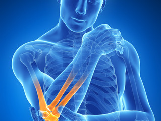 Elbow Pain - Pulse Physiotherapy and Pilates