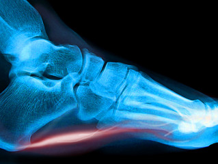 What is Plantar Fasciitis - Pulse Physiotherapy and Pilates