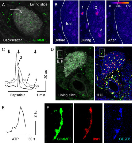 Living Pancreatic Tissue Slices  – A Versatile Tool to Study Islets in their Native Environment